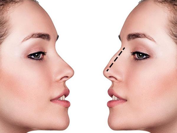Phẫu thuật thẩm mỹ mũi - Thẩm mỹ viện Hoàng Anh
