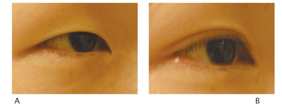 Hình 12-14 Tiền phẫu (A) và hậu phẫu 6 tháng theo phương pháp phẫu thuật khóe mắt ngoài của Lim đi kèm phẫu thuật mắt hai mí (B).