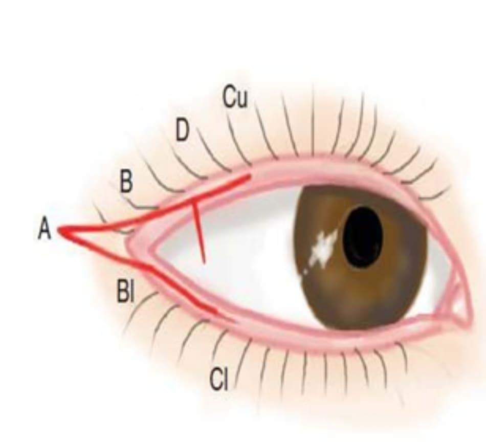 Hình 12-3 Đường A-Cu và D-E.