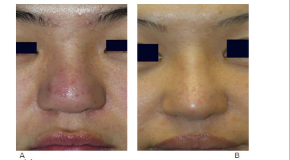 Hình 17-10 A, Hình ảnh trước mổ cho thấy da dầy và đầu mũi to rộng. B, Hình ảnh sau phẫu thuật cho thấy đầu mũi định hình sắc nét hơn và nhô cao.