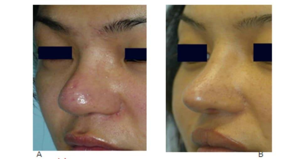 Hình 17-11 A, Hình ảnh nhìn xiêng trước phẫu thuật. B, Hình ảnh sau phẫu thuật.