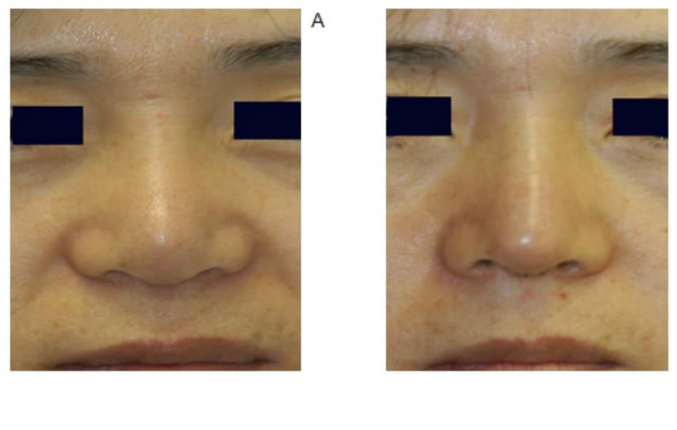 Hình 17-7 A, Hình ảnh trước phẫu thuật cho thấy đầu mũi bị xẹp. B, Hình ảnh sau phẫu thuật cho thấy đầu mũi gọn hơn, nét cong mềm mại, lỗ mũi hiện diện rõ hơn, và thu hẹp được nền cánh mũi.