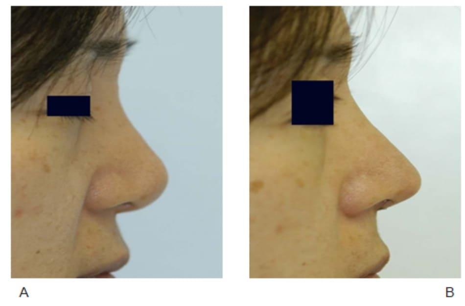 Hình 17-8 A, Hình ảnh trước phẫu thuật. B, Hình ảnh sau phẫu thuật cho thấy đầu mũi nhô ra trước nhiều hơn và cải thiện góc trụ mũi - môi.