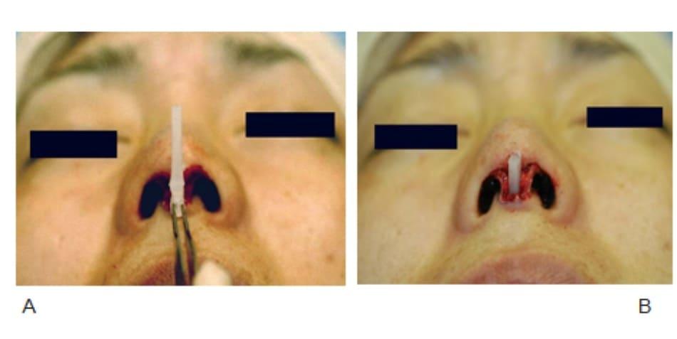 Hình 17-9 (tiếp theo) A, Mảnh ghép trụ mũi có kích thước dài, đủ để nâng đầu mũi. B, Phần silicone trụ mũi nằm bên trong khoang trụ mũi. Khoang được tạo hẹp và sâu xuống đến xương hàm trên.