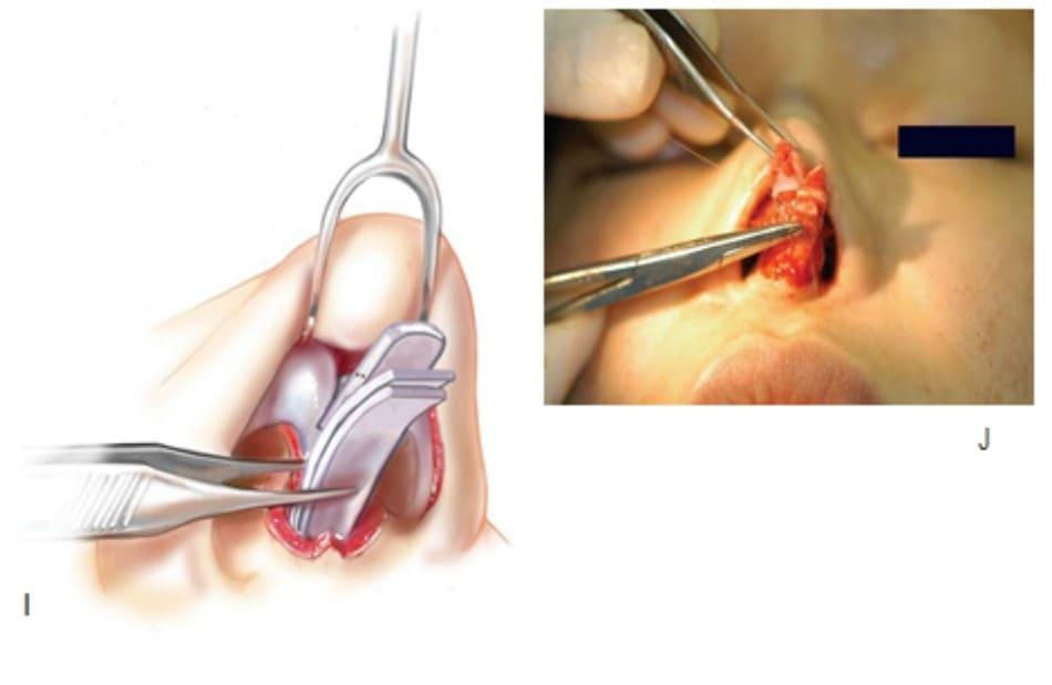 Hình 17-9 (tiếp theo) I, Minh họa quá trình phẫu thuật ở H J, Thanh độn sống mũi được may vào phần trên sụn bên tại hai vị trí nhằm ngăn sự dịch chuyển về phía hai bên, dịch chuyển ra trước hoặc cả hai.