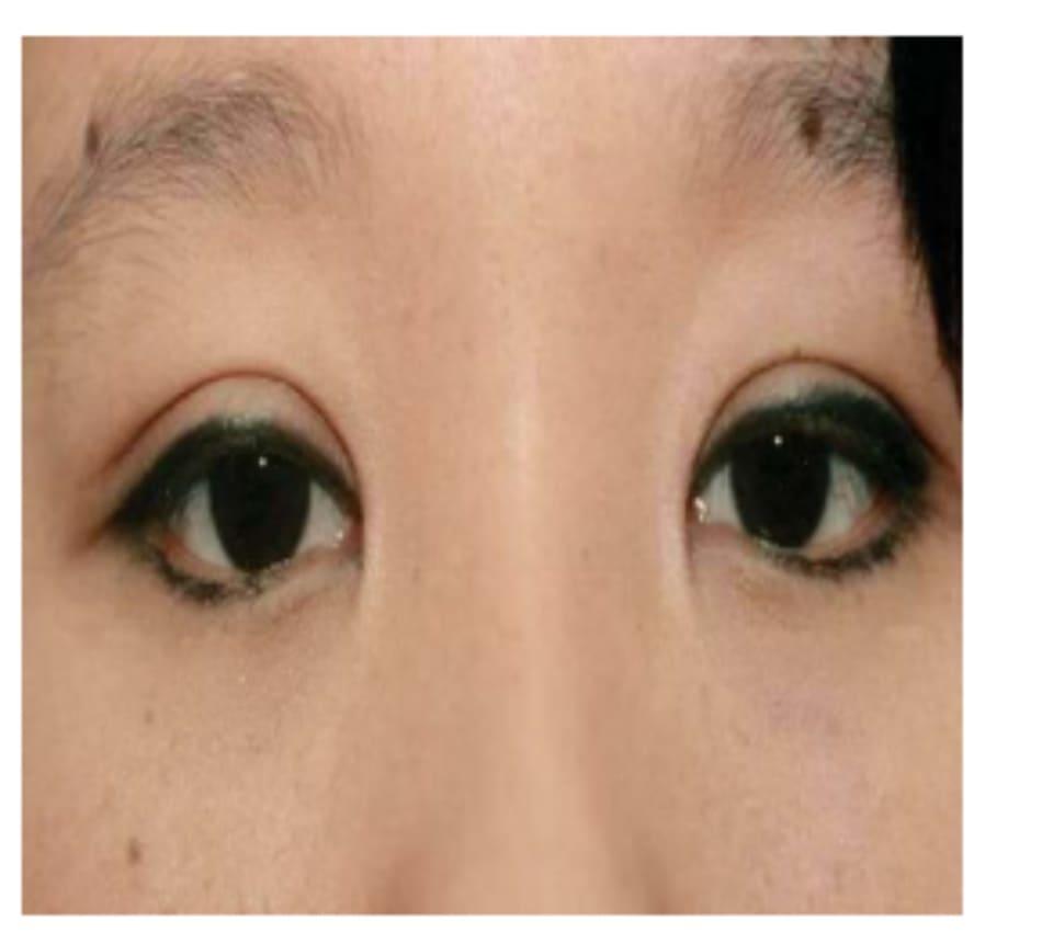 Hình 1-11 Đôi mắt có vẻ tròn vì nếp gấp quạt và nếp gấp hai mí cao.