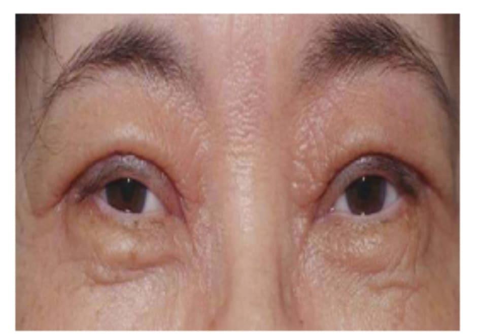 Hình 1-12 Nếp gấp hai mí sau phẫu thuật ở người phụ nữ lớn tuổi này có vẻ dày và không tự nhiên.