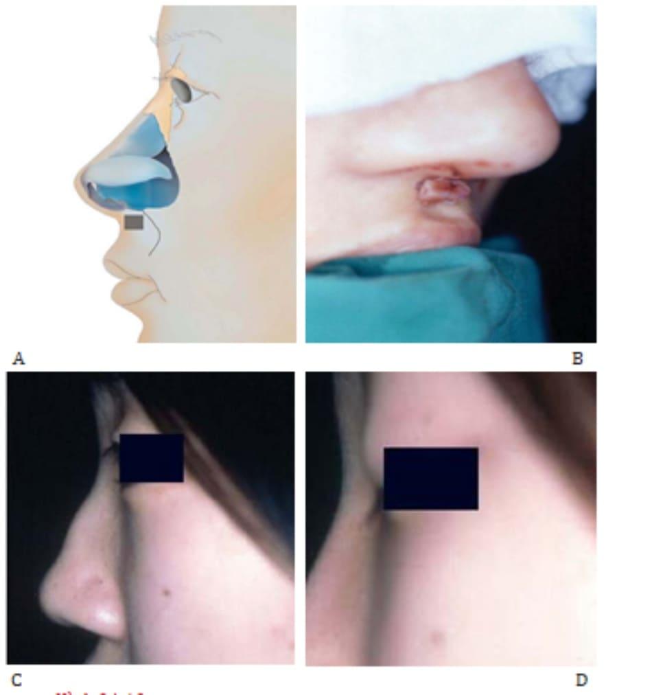 Hình 24-10 A và B, Vạt phồng. Hình ảnh tiền phẫu (C) và Hình ảnh hậu phẫu (D) cho thấy cải thiện góc mũi môi.