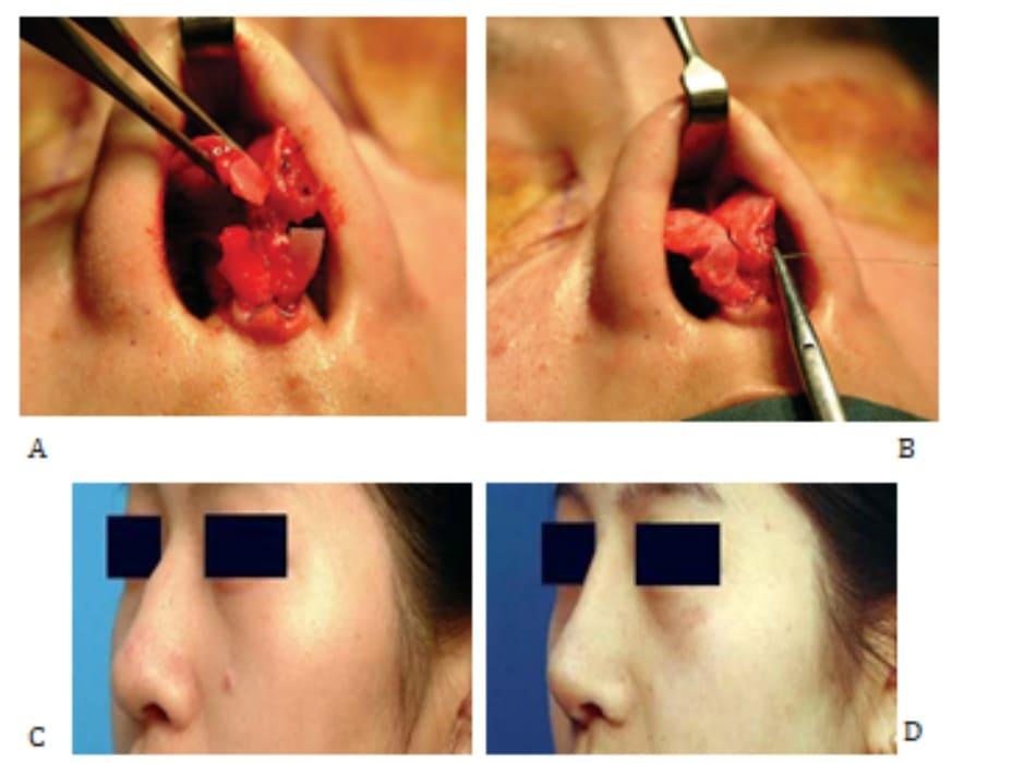 Hình 24-12 A và B, Hình ảnh trong phẫu thuật. Hình ảnh tiền phẫu (C) và hình ảnh hậu phẫu (D) cho thấy vùng chóp mũi được làm hẹp nhưng chiều cao vẫn được giữ.