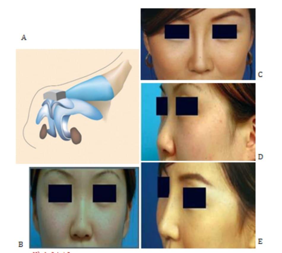 Hình 24-13 A, LLC được gia cố bằng sụn vành tai trước khi thực hiện quy trình xử lý chóp. B và C, Hình ảnh tiền phẫu. D và E, Hình ảnh hậu phẫu.