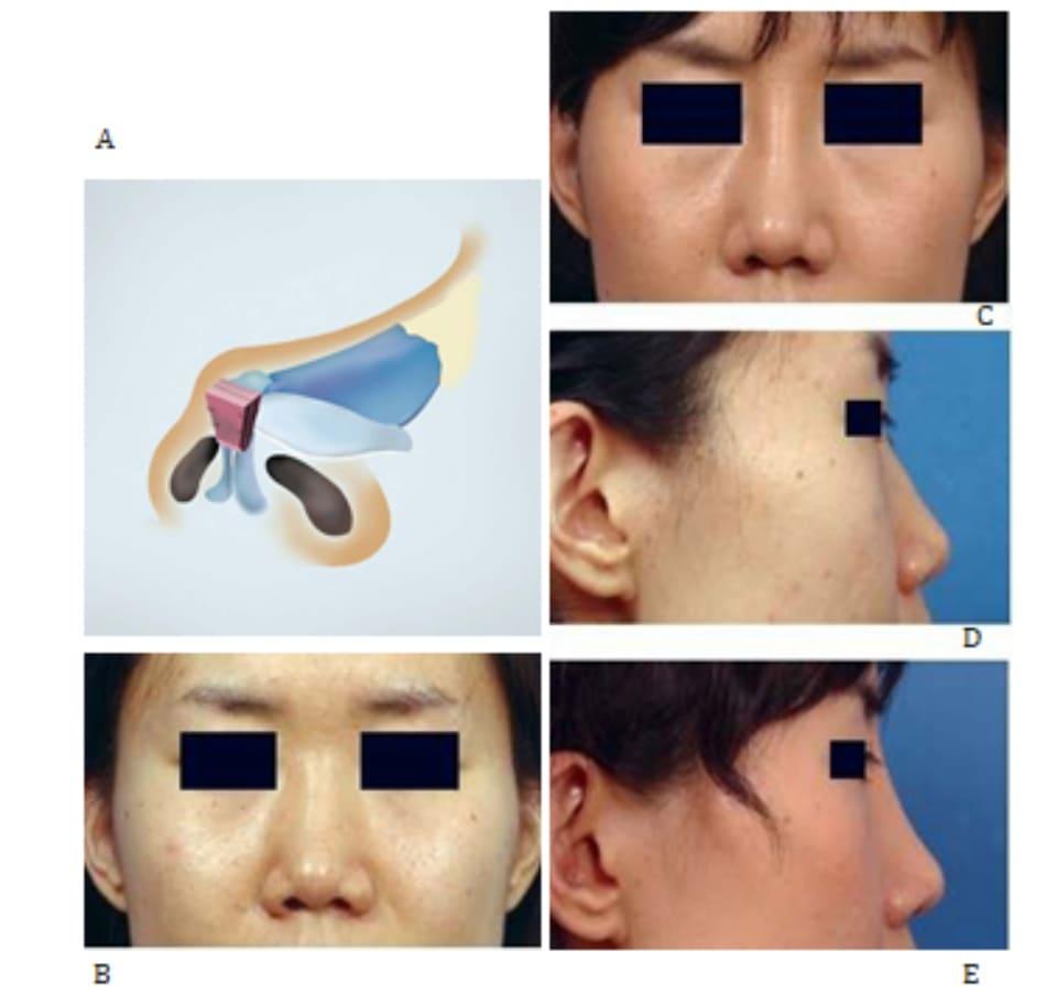 Hình 24-14 A, Minh họa các lớp vạt che phủ. B và C, Hình ảnh tiền phẫu. D và E, Hình ảnh hậu phẫu.