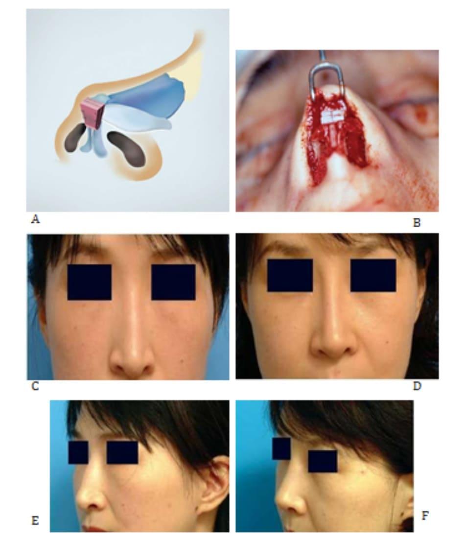 Hình 24-15 A, Đặt vạt nón đa lớp trong phẫu thuật. B, Hình ảnh trong phẫu thuật. C và D, Hình ảnh tiền phẫu. E và F, Hình ảnh hậu phẫu.