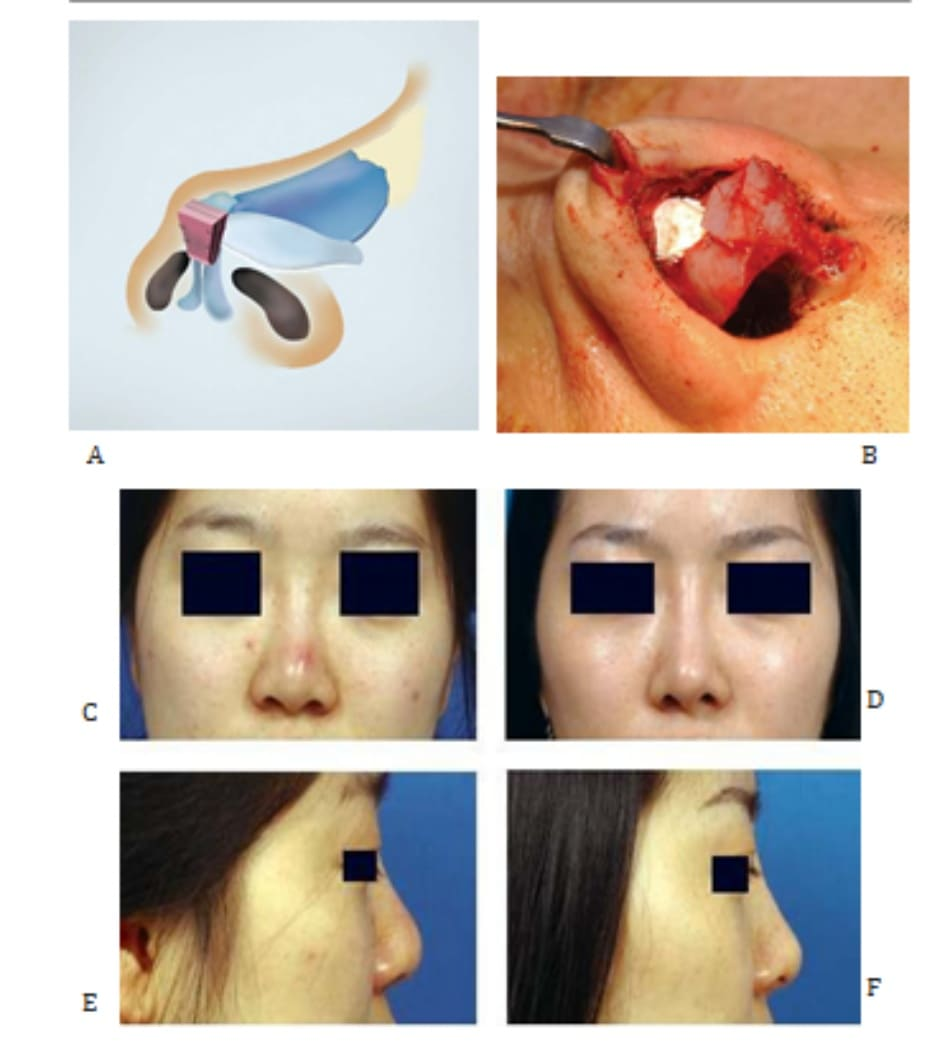 Hình 24-16 A, Vạt che phối hợp vạt nón. B, Hình ảnh trong phẫu thuật. C và D, Hình ảnh tiền phẫu. E và F, Hình ảnh hậu phẫu.