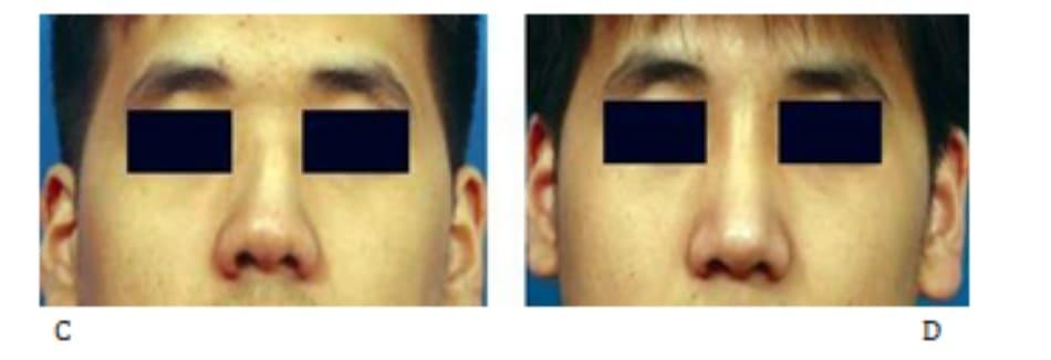 Hình 24-18 (tiếp theo) Vạt sụn sườn. A và B, Hình ảnh trong phẫu thuật. C và D, Hình ảnh tiền phẫu.