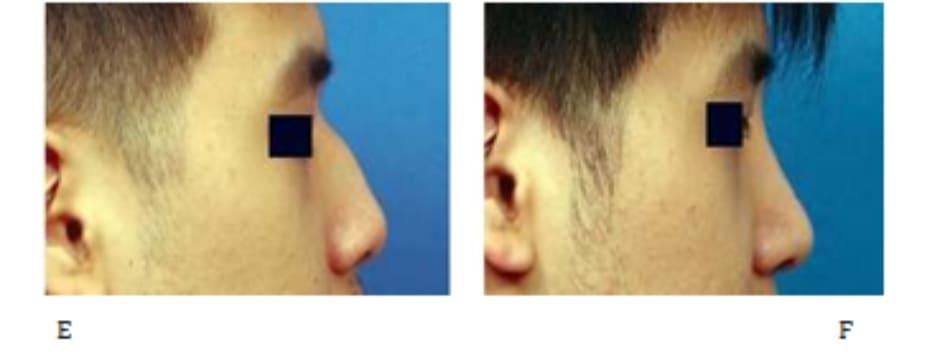 Hình 24-18 (hết) Vạt sụn sườn. E và F, Hình ảnh hậu phẫu.
