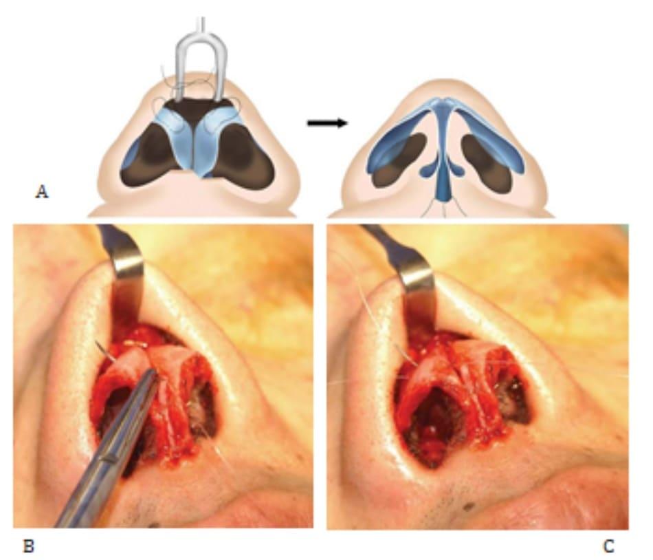 Hình 24-3 (tiếp theo) A, Khâu ngang vòm. B và C, Trong phẫu thuật.