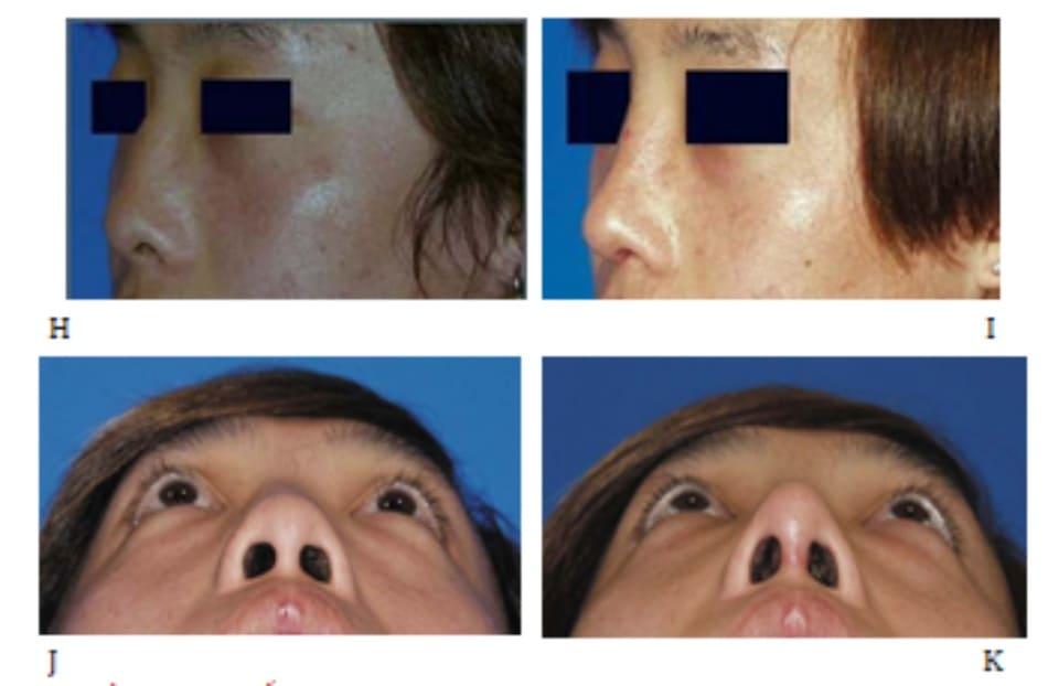 Hình 24-3 (hết) H và J, Hình ảnh tiền phẫu. I và K, Hình ảnh hậu phẫu.