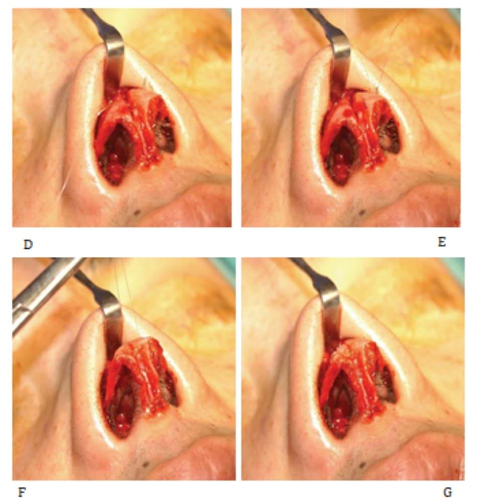 Hình 24-3 (tiếp theo) D tới G, Trong phẫu thuật.