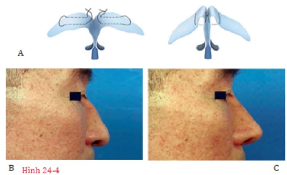 Hình 24-4C A, Một phương pháp thay thế để khâu ngang vòm bằng cách khâu riêng từng vòm và sau đó buộc hai vòm lại với nhau. B, Hình ảnh tiền phẫu. C, Hình ảnh hậu phẫu.