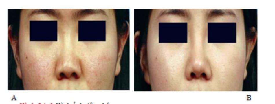 Hình 24-6 Hình ảnh tiền phẫu (A)Hình ảnh hậu phẫu. (B) Sau khi đặt vạt che.