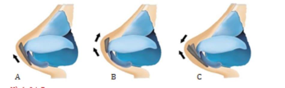 Hình 24-7 A, Vạt che dài sau nâng chóp mũi. B, Vạt ngắn có thể lăn ngược lại và tạo góc chếch. C, Vạt dài có hỗ trợ phía sau giúp tăng hiệu ứng làm dài mũi.