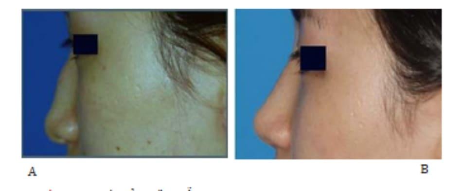 Hình 24-9 Hình ảnh tiền phẫu (A)Hình ảnh hậu phẫu (B) sau đặt vạt nón.