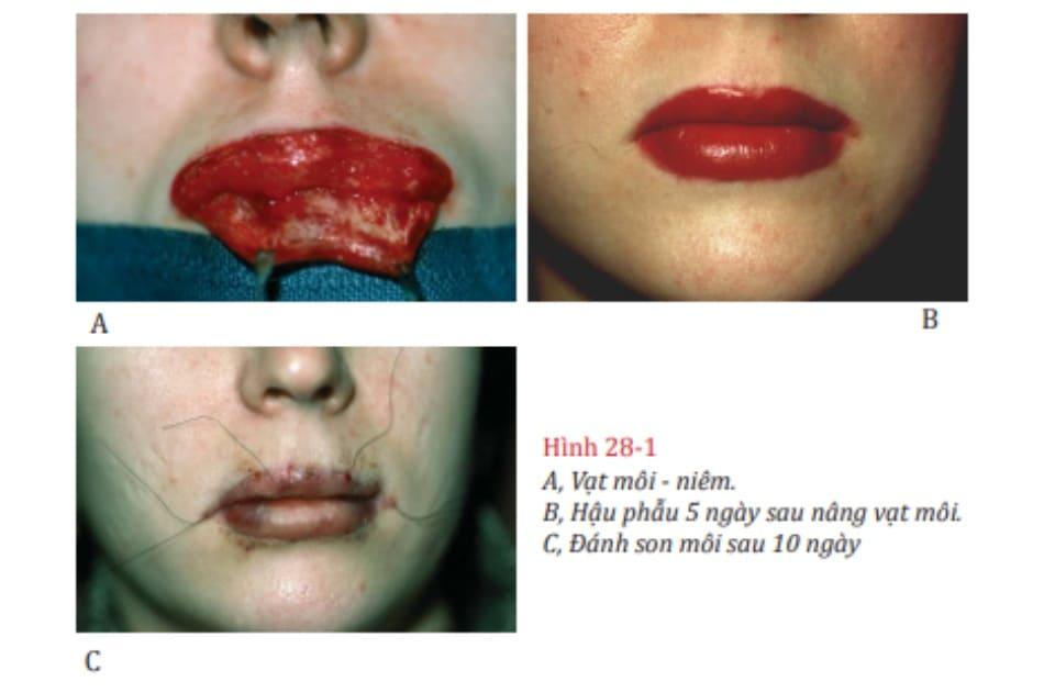Hình 28-1 A, Vạt môi - niêm. B, Hậu phẫu 5 ngày sau nâng vạt môi. C, Đánh son môi sau 10 ngày