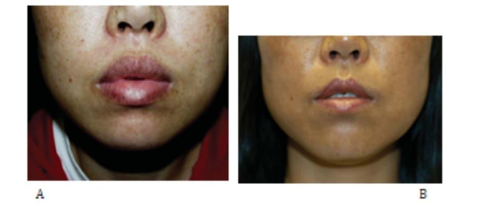 Hình 29-4 Thu nhỏ môi. A, Hình ảnh tiền phẫu nhìn trước. B, Hình ảnh hậu phẫu. Bờ môi trở nên rõ ràng hơn.