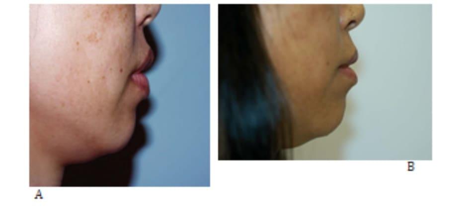 Hình 29-5Thu nhỏ môi. A, Hình ảnh tiền phẫu nhìn trước. B, Hình ảnh hậu phẫu.