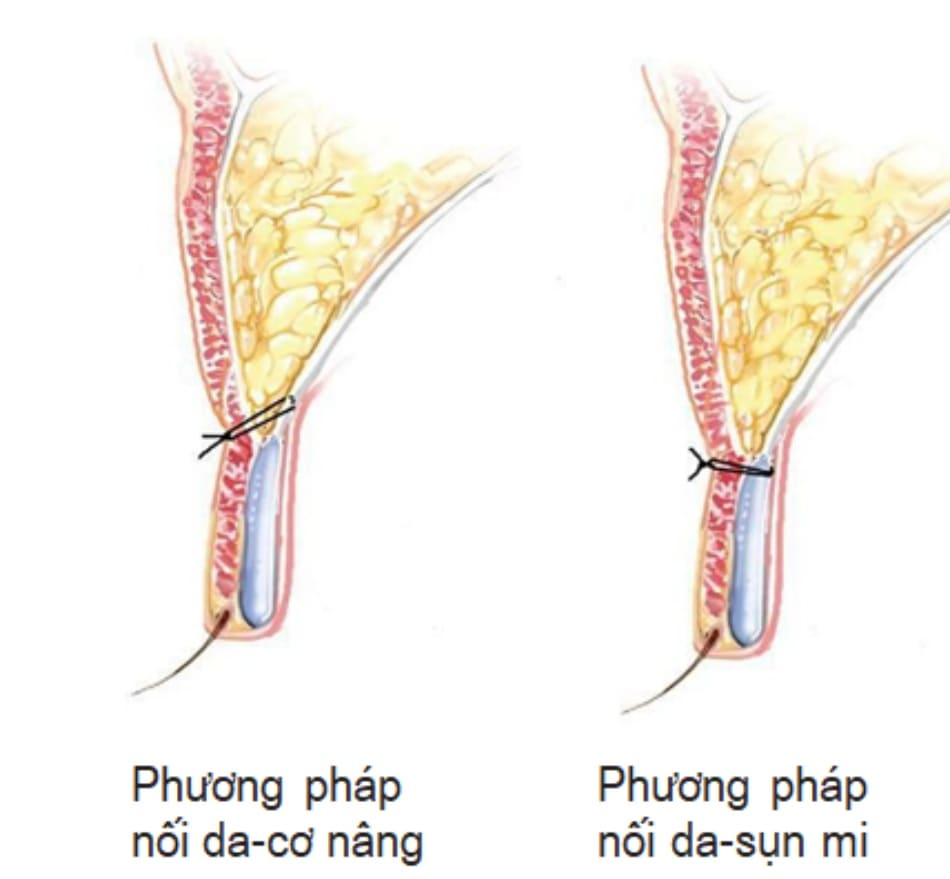 Hình 2-1 So sánh phương pháp nối da – cơ nâng và phương pháp nối da-sụn mi.