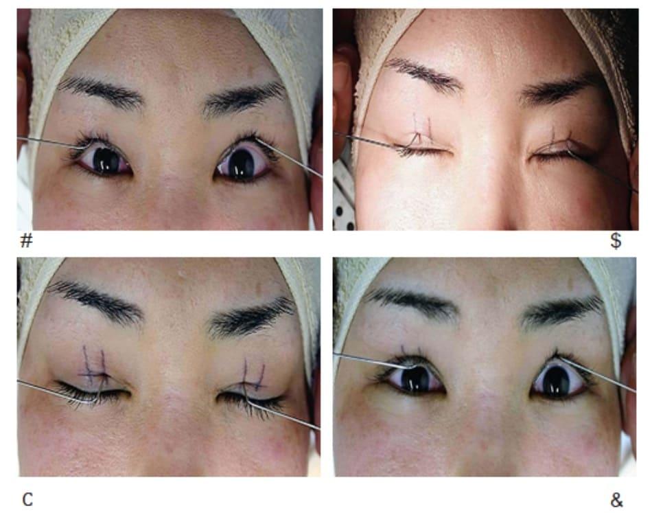 Hình 2-10 Đặt các đầu của đầu dò lệ đạo $owman vào các điểm bên trong và bên ngoài (đặt bên trái và bên phải cùng một lúc) và mở mắt để xem các đường kẻ mắt hai mí.