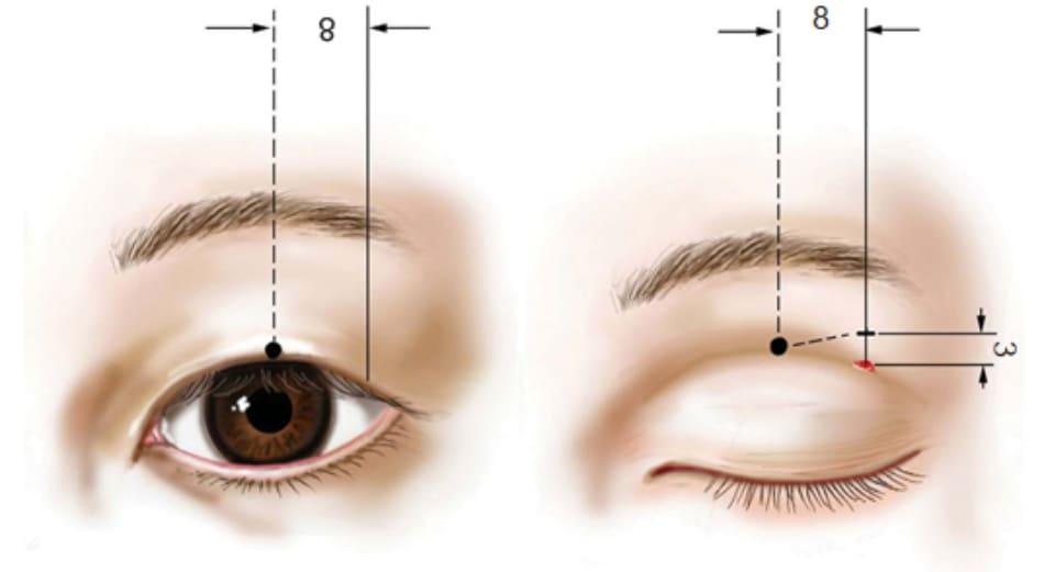 """Hình 2-12 Sơ đồ hiển thị các phương pháp thiết kế. Điểm màu hồng là chỉ số chiều rộng tự nhiên. """"Mắt mở"""" cho thấy một điểm ở rìa mí trên; """"mắt nhắm"""" cho thấy điểm giống nhau trên da mí mắt như trên """"mắt mở""""."""