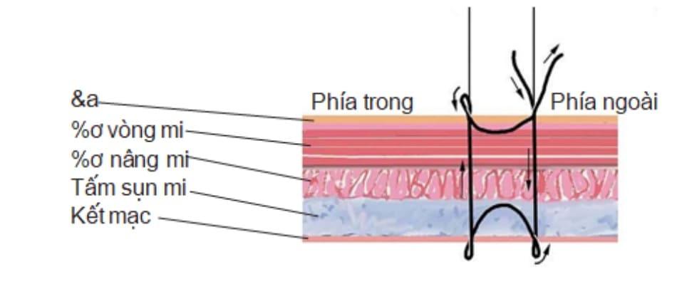 Hình 2-20 Quy trình khâu mũi đơn: bước 1 đến 5.