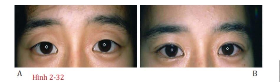 Hình 2-32 Một mí đôi hẹp về chiều rộng so với nếp gấp da tự nhiên sẽ cải thiện vẻ trầm buồn ở mí mắt trên, tương tự như rèm.