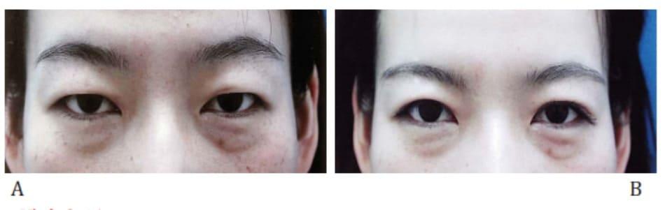 Hình 2-41 Kỹ thuật khâu vùi đơn: trước phẫu thuật và sau phẫu thuật