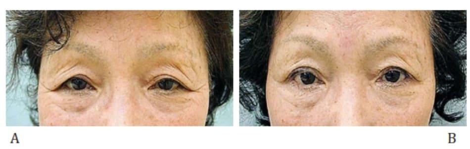 Hình 2-42 Phương pháp thắt nối góc ngoài: trước phẫu thuật và sau phẫu thuật.