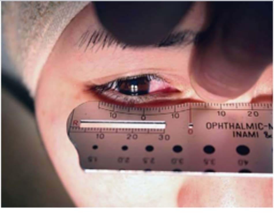 Hình 2-5 Đặt dụng cụ đo nhãn khoa trên khóe mắt trong, trong khi nếp gấp Mongo- lian được kéo bằng ngón tay.