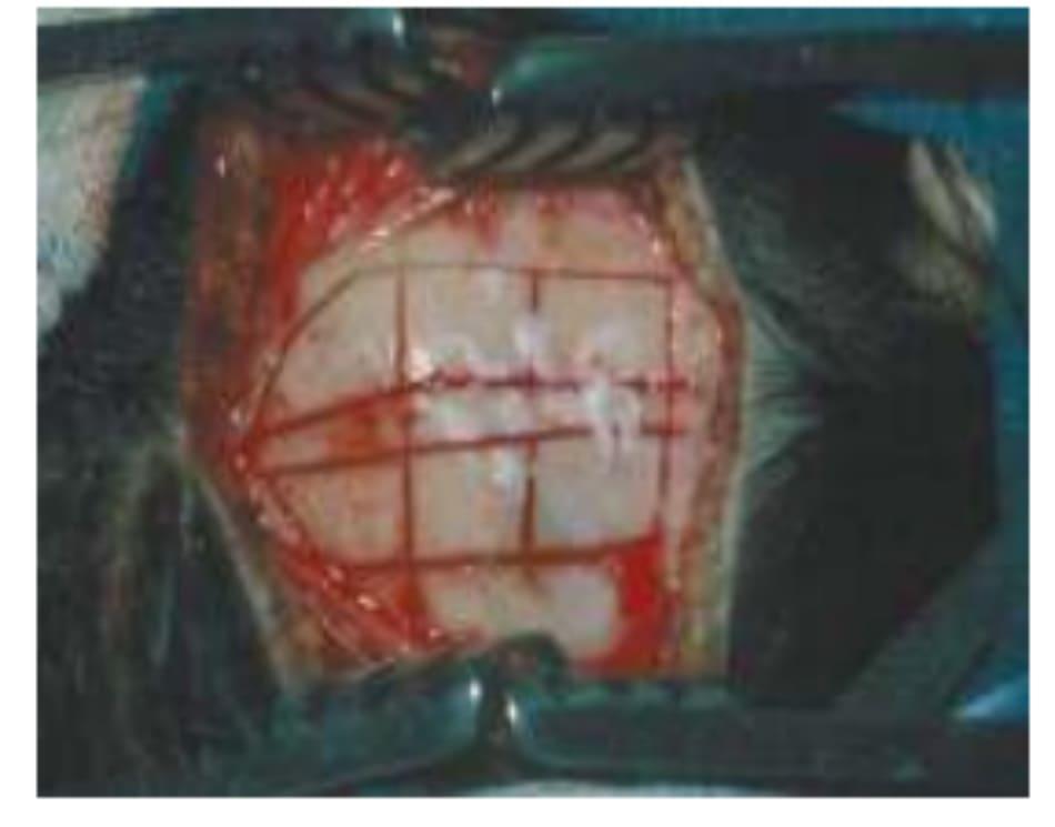 Hình 31-1 Thu thập mảnh ghép vòm sọ
