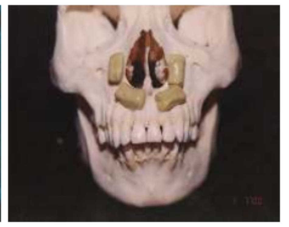 Hình 31-2 Kế hoạch đặt mảnh ghép quanh lỗ mũi sau