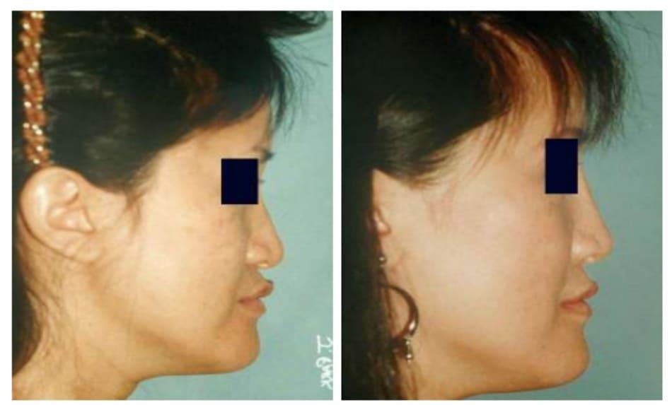 Hình 31-5 Kế hoạch đặt mảnh ghép quanh lỗ mũi sau