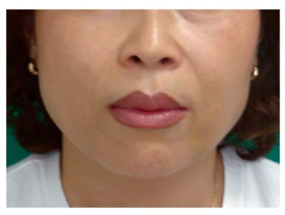 Hình 32-10 Hình khuôn mặt sau phẫu thuật (case 2).