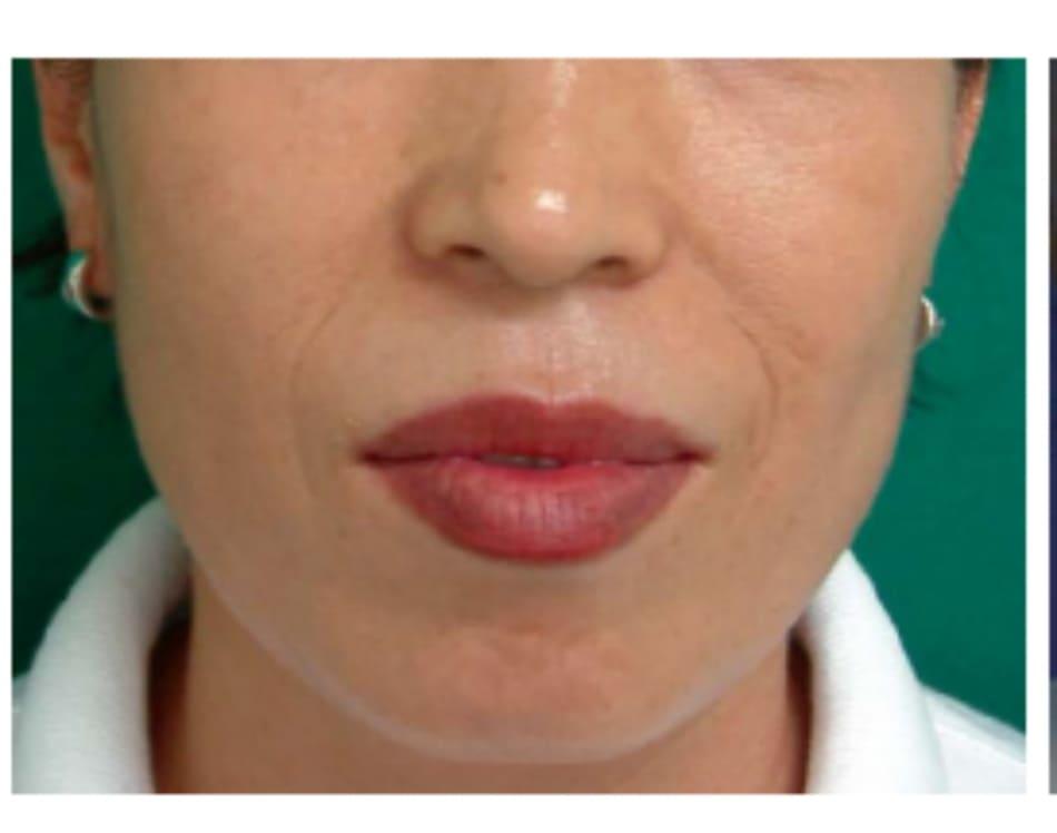 Hình 32-7 Hình khuôn mặt trước phẫu thuật (case 1)