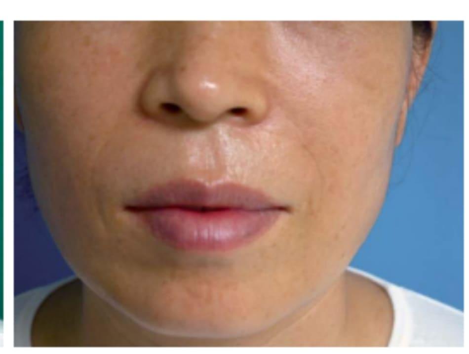Hình 32-8 Hình khuôn mặt sau phẫu thuật (case 1)