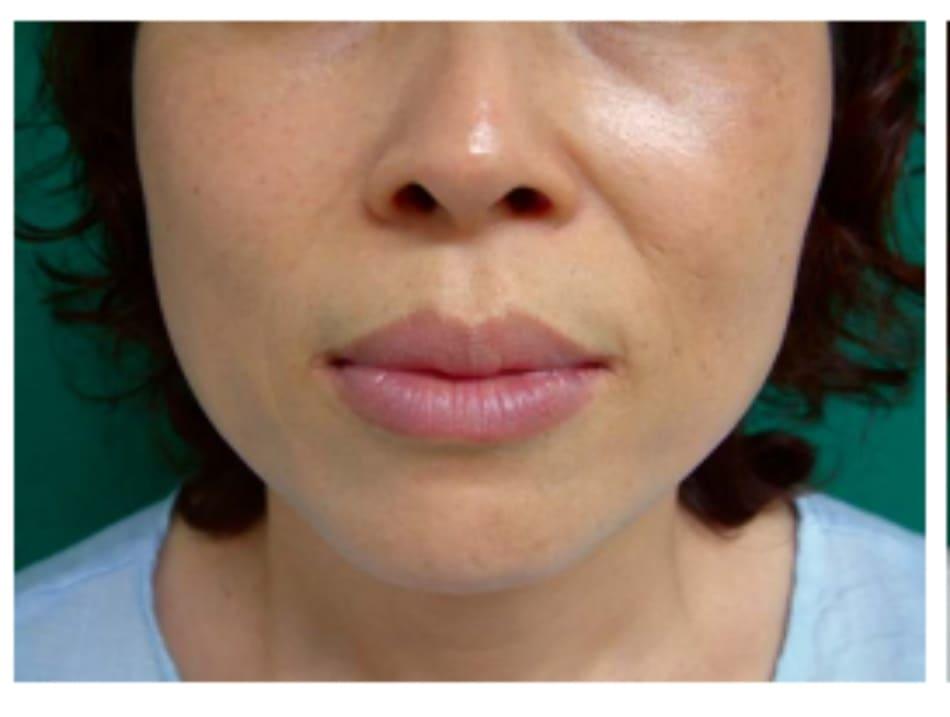 Hình 32-9 Hình khuôn mặt trước phẫu thuật (case 2)