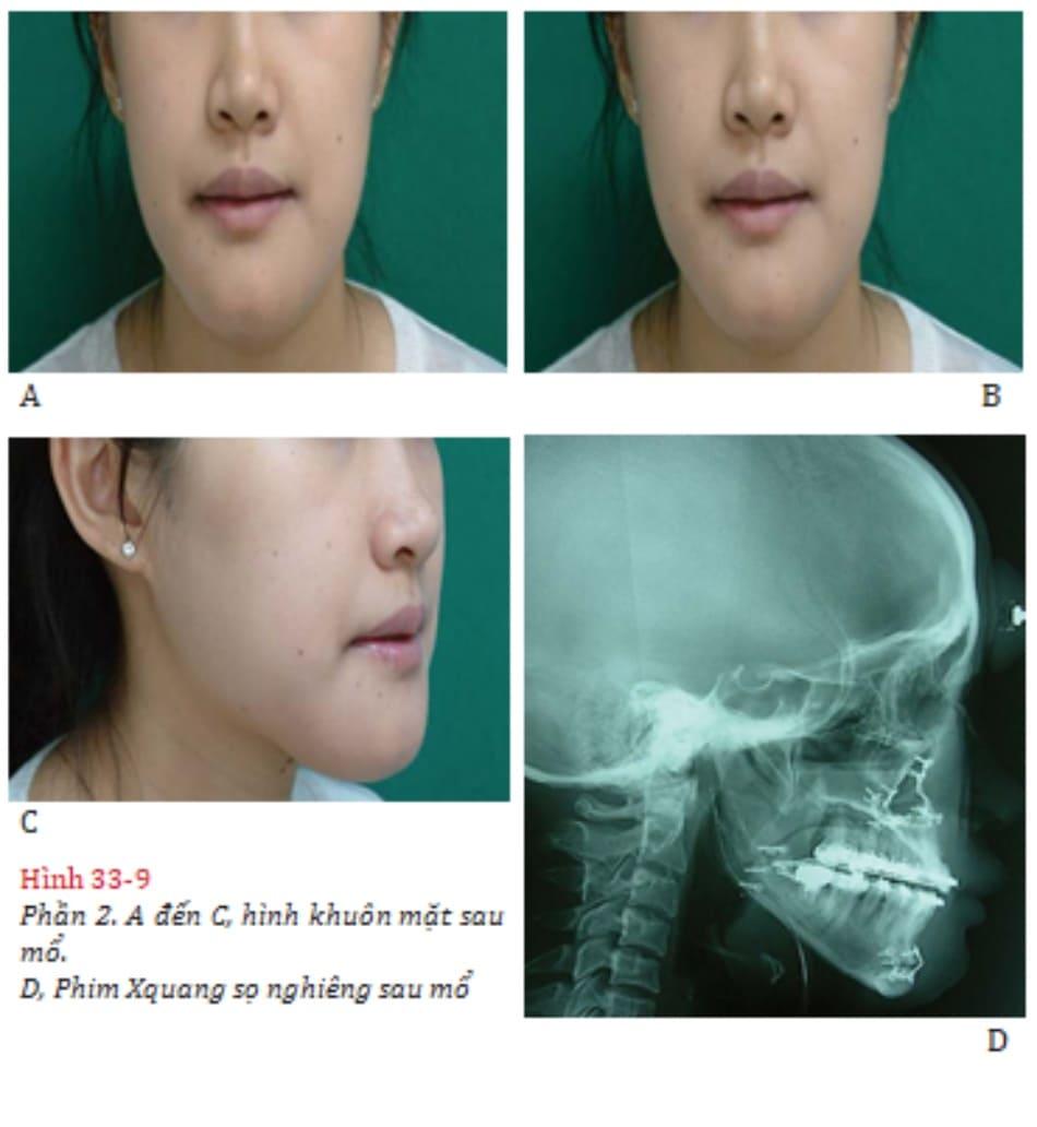 Hình 33-9 Phần 2. A đến C, hình khuôn mặt sau mổ. D, Phim Xquang sọ nghiêng sau mổ