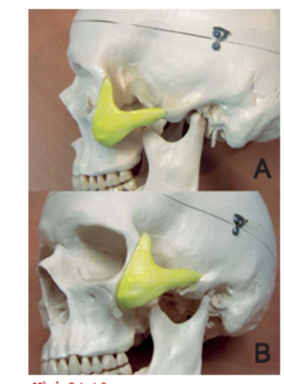 Hình 34-10 A đến B, tái định vị lên trên phần phức hợp gò má di động. Phần nhô ở trên của vành bên ổ mắt có thể được loại bỏ khi cần thiết.