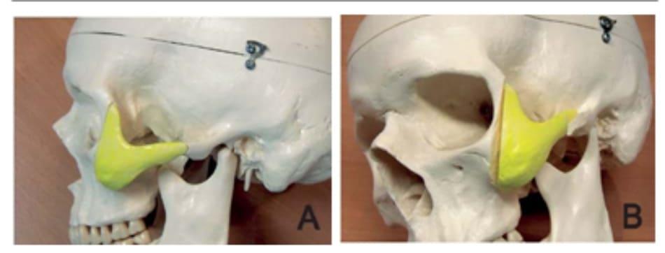 Hình 34-11 A đến B, tái định vị xuống dưới phần phức hợp gò má di động. Chú ý hướng phần xương gò má phía sau. (thái dương). Cắt xương hình chữ Z ở cung gò má nhằm tối ưu hiệu quả của thu gọn xương gò má và cho phép kết nối giữa các phần của cũng gò má được tái định vị.