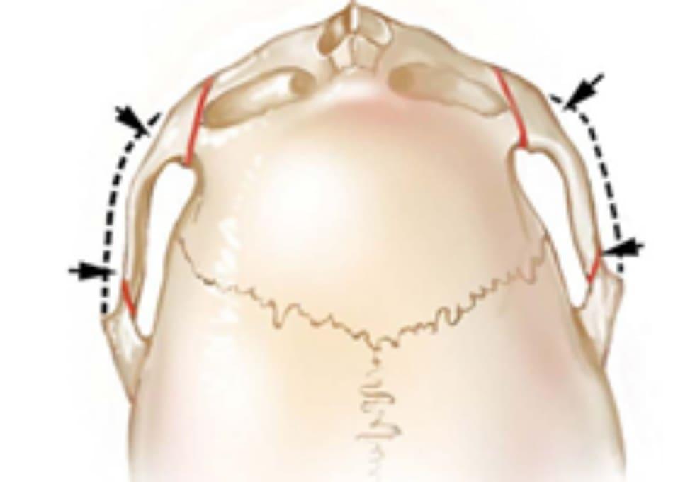 Hình 34-12 Góc nhìn so sánh cung gò má sau phẫu thuật.