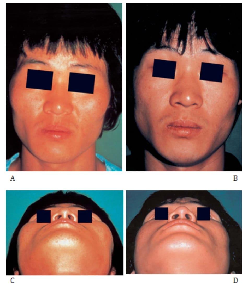 Hình 34-14 A đến C, Hình ảnh trước mổ của một người nam 23 tuổi với phức hợp gò má nhô cao mất cân đối. B đến D, Hình ảnh sau mổ thu gọn gò má với kĩ thuật cắt và tái định vị.