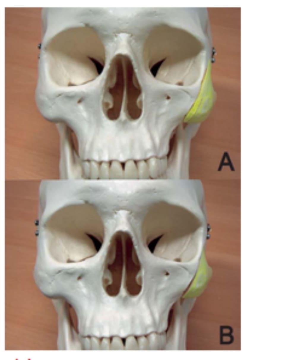 Hình 34-9 A đến B, tái định vị vào giữa phần phức hợp gò má di động. Chú ý rằng một dải xương có thể được cắt bỏ để giảm đi phần thừa ở bên khi cần thiết.